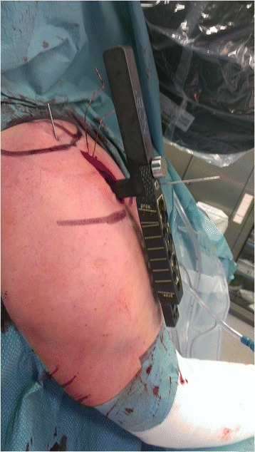 Intraoperative image of the deltoid split approach. The course of the axillary nerve is marked using a sterile pen