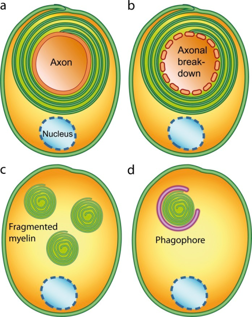 "Myelinophagy. (A) Graphical illustration of a healthy myelinating Schwann cell. (B) When Wallerian degeneration is initiated, the axon starts to break down into fragments. (C) The Schwann cell then internalizes myelin fragments, possibly by the fusion of the outer ""lips"" of the Schwann cell plasma membrane. (D) Next, the resulting myelin fragments are taken up into phagophores. Not shown is the following: the sealing of phagophores to form autophagosomes and their fusion with lysosomes, which finally leads to degradation of the myelin fragments."