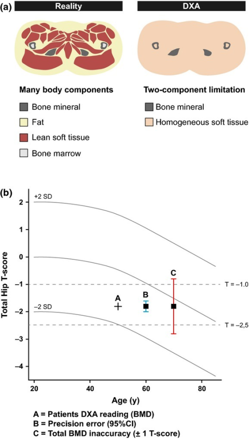 Inherent inaccuracy related to dual-energy X-ray absorptiometry (DXA)-derived bone mineral density (BMD) seriously undermines the method. (a) The three body components of bone mineral, fat and lean soft tissue have different attenuation coefficients, but DXA employs two photon energies and can thus only resolve two components at a time. Therefore, assumptions are made with DXA about fat versus lean tissue ratios in the calculation of BMD. Numerous studies (using both phantoms and cadaver specimens) have consistently shown that the magnitude of uncertainty inherent in BMD measurement can be ±1 T-score. (b) To illustrate the difference between repeatability (precision error) and accuracy (error), the black cross shows a patient's result plotted on a typical DXA scan report. The blue error bars denote the same T-score result drawn with an error bar indicating the 95% confidence interval (CI) of ±0.2 in the T-score assessment arising from BMD precision errors. Finally, the same result is drawn with an error bar indicating the 95% CI of ±1.0 in the T-score assessment arising when accuracy errors and precision errors are combined. Adapted from [49].
