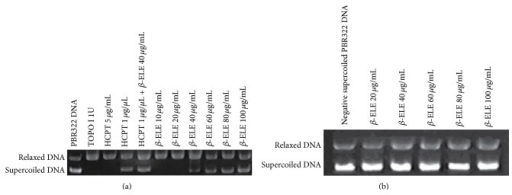 TOPO I catalytic activity is inhibited by β-ELE. (a) The effect of β-ELE (β-Elemene) on the relaxation of TOPO I-mediated, negative supercoiled pBR322 DNA. As shown in (a), lane 1 is negative supercoiled pBR322 DNA (supercoiled DNA, S); lane 2 is relaxed DNA that is the product of supercoiled DNA reacted with the enzyme (relaxed DNA, R); and lanes 3 and 4 are positive control groups. HCPT (a typical inhibitor of TOPO I) had no inhibitory effect on the DNA relaxation activity of TOPO I at the concentration of 5 μg/mL, whereas it completely inhibited the relaxation of pBR322 DNA mediated by TOPO I at a concentration of 1 μg/μL. Lane 5 shows the effect of 1 μg/μL HCPT combined with 40 μg/mL β-ELE on the relaxation of TOPO I-mediated negative supercoiled pBR322 DNA. As shown in (a), the combination inhibited the relaxation activity of TOPO I. Lanes 6 to 11 show the effects of different concentrations of β-ELE (40, 60, 80, and 100 μg/mL) on the relaxation of negative supercoiled pBR322 DNA mediated by TOPO I. β-ELE has no inhibitory effect on the relaxation activity of TOPO I at concentrations of 10 and 20 μg/mL; however, with increasing drug concentration, β-ELE showed an increasing inhibitory effect on the DNA relaxation activity of TOPO I at concentrations of 40, 60, 80, and 100 μg/mL. The OD of MAX was 58 ± 3, 80 ± 6, 92 ± 10, and 134 ± 12. The statistical analysis showed significant differences between the 100 μg/mL and 40 μg/mL treatment groups and the 60 μg/mL and 80 μg/mL treatment groups (P < 0.05). (b) β-ELE (β-Elemene) has no direct effect on pBR322 DNA. As shown in (b), the average OD of the control group was 22860 ± 2412, and those of the β-ELE treatment groups were 24572 ± 518, 22318 ± 651, 22781 ± 837, 20781 ± 1180, and 24284 ± 749 for 20, 40, 60, 80, and 100 μg/mL of β-ELE, respectively. There was no significant difference between the groups (P > 0.05).