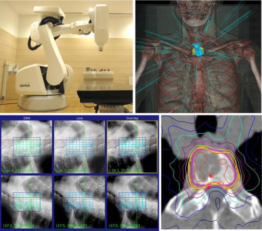 Upperpanels the CyberKnife apparatus (left); a 3-dimensional rendered image (right) blue lines indicate beam directions. Lowerpanels Xsight, the image-guidance system used in the CyberKnife system, enables the automatic tracking of skeletal structures (left). Representative dose distribution (right)