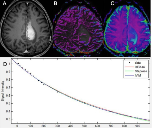 Intravoxel incoherent motion imaging of Primary CNS lymphoma.Primary CNS lymphoma of the left medial fronto-parietal lobe, as seen on axial, contrast-enhanced, T1-weighted imaging (A). IVIM-derived f shows no increase of perfusion in the corresponding, solid, enhancing lesion of the tumor (B). IVIM-derived D shows a similar D value to that of the surrounding, normal white matter (C). A diffusion signal decay as a function of multiple b values within the ROI of the tumor solid area is monoexponential (D).