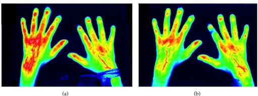 (a) Initial imaging of the enhancement of indocyanine green by fluorescence optical imaging as a marker of inflammatory activity in patients with SSc and associated Raynaud's phenomenon before the application of alprostadil (day 0, baseline) and (b) after the alprostadil therapy (day seven), corresponding to the reduced enhancement of indocyanine green after the iloprost therapy over 7 days [12].