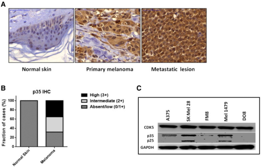 Expression of CDK5 and its activator protein CDK5R1/p35 in human melanoma tissues and cell lines. (A) CDK5R1/p35 was found to be overexpressed in primary melanoma as well as in metastatic lesions as compared with normal skin using immunohistochemistry. (B) In tissue microarrays, intermediate (2 +) or high (3 +) p35 immunolabeling was more commonly observed in malignant melanoma tissue as compared with benign skin. (C) Western blot analysis of CDK5, p35, and p25 steady-state expression levels in five human melanoma cell lines.
