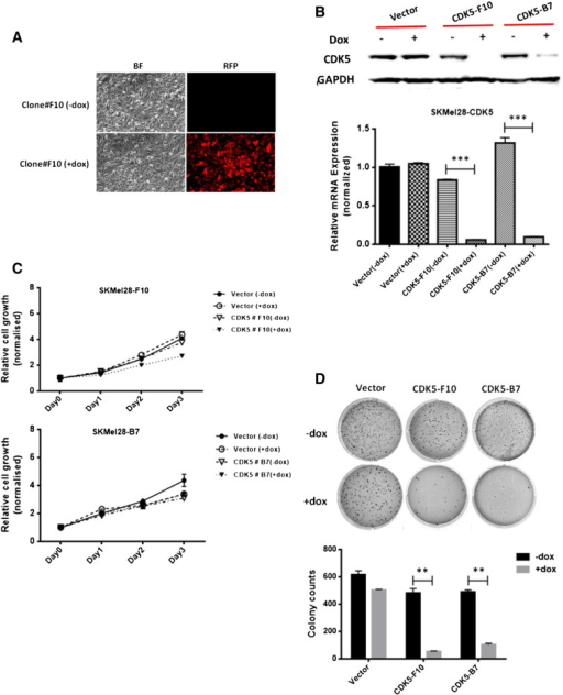 "shRNA-mediated knockdown of endogenous CDK5 inhibits anchorage-independent growth of melanoma cells. An inducible pTRIPZ-Tet-On expression vector system containing CDK5-specific shRNA was used to knock down CDK5 expression in SKMel28 human malignant melanoma cells. (A) Transduction efficiency was confirmed by red fluorescent protein expression as visualized using fluorescence microscopy. (B) Successful inducible CDK5 knockdown was checked using Western blot analysis (upper panel) and quantitative real-time RT-PCR analysis (lower panel) both in the absence and in the presence of doxycycline, respectively. (C) Inducible knockdown of CDK5 did not show any significant effect on the net cell growth of SKMel28 cells as assessed using MTS assay. The figure shows results of two different pairs of mass clones (designated ""SKMel28-F10"" and SKMel28-B7"" with their respective mock controls) both in the presence (= induced state) and in the absence (= uninduced state) of doxycycline. (D) In contrast, colony formation and anchorage-independent growth in soft agar were significantly reduced in both SKMel28 mass clones when induced by doxycycline as compared with uninduced or mock-transduced controls. Colony counts are plotted as means and SD from three independent experiments; *P < .05."
