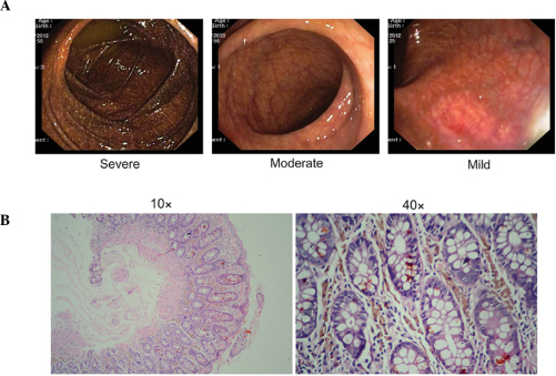 Pigmentation characteristics of melanosis coli. (A) Representative endoscopic images of the three characterized severities. Severe, black-brownish pigmentation of the mucosa of the entire colon. Moderate, diffusely brownish pigmentation. Mild, edematous, snake-skin appearance and pigmentation of the mucosa. (B) Hematoxylin and eosin staining revealing typical pigments in granule-laden macrophages in the lamina propria.