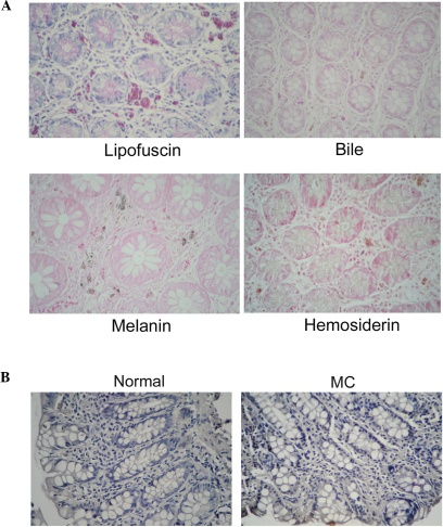 Specific staining and immunohistochemistry for pigment detection in MC tissues. (A) Lipofuscin, periodic acid Schiff reaction demonstrated the presence of lipofuscin, which appears as purple particles. Bile, ferric chloride in trichloroacetic acid medium analysis revealed the absence of bile. Melanin, no obvious black particles were observed following Masson-Fontana ammoniacal silver staining. Hemosiderin, prussian blue staining for ferric ions revealed a negative result for hemosiderin in tissue. Magnification, x40. (B) Paraffin wax-embedded tissues stained using a melanin-antibody. No melanin expression was observed in the MC tissues. Magnification, x40. MC, melanosis coli.
