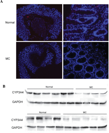 Elevated expression of CYP3A4 in MC and normal tissues. (A) Immunofluorescence assay. Red staining indicates protein expression of CYP3A4, while blue staining indicates the nuclei of the cells. Magnification: Left column, ×4; right column, ×20. (B) Immunoblot analysis of the expression of CYP3A4. Results are representative of 19 independent sample tissues per group. Expression of CYP3A4 was standardized to that of GAPDH. MC, melanosis coli.