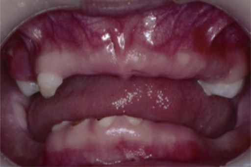 Postextraction intraoral frontal view.