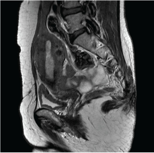 Magnetic resonance image of the abdomen and pelvis showing the anterior wall adherence.