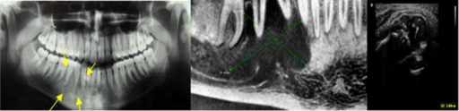 A case of central giant cell granuloma. (A) Panoramic view reveals radiolucent lesion with scalloped margin in the right mandibular body. (B) CBCT shows lytic lesion in right mandibular body. (C) Ultrasound image shows mixed echogenicity (hyperechoic-hypoechoic pattern)
