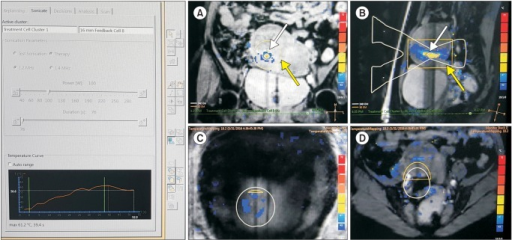 Coronal (A) and sagittal (B) magnetic resonance (MR) thermometry images show temperature overlay and the magnetic resonance (MR); white lines, white arrow) during volumetric MR imaging (MRI)-guided high intensity focused ultrasound surgery (MRgFUS) ablation with a 16 mm treatment cell. X-shaped two white triangles are their presumed sonication pathway. Yellow box indicate the 30-240 EM area, the possible thermal damage (yellow arrow). MR thermometry show the temperature of abdominal skin (C) & tissues adjacent to sacrum (D).