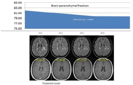 Illustration of a longitudinal effect of treatment on brain parenchymal fraction. (Source: Dr. Rovira; data on file)