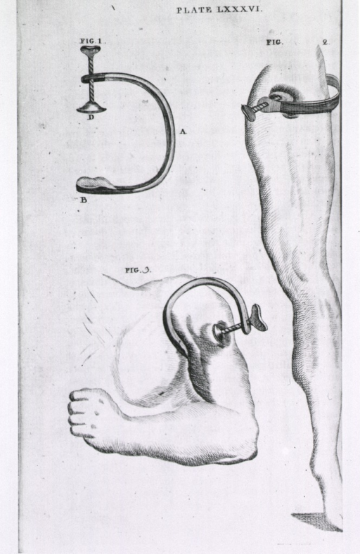 <p>The clamp by itself, and in position on the upper arm and the upper leg.</p>