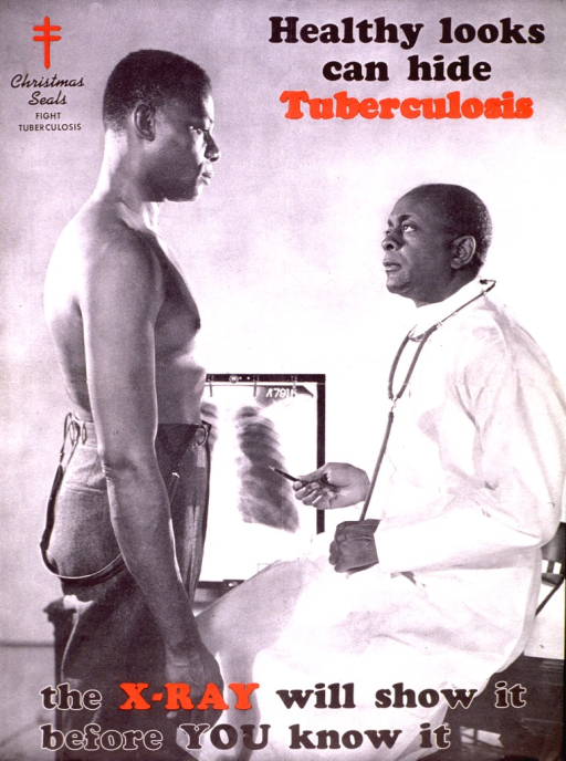 <p>A photograph of a shirtless man standing in front of a physician.  The physician is pointing to an x-ray.</p>