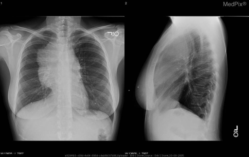 Routine PA and lateral CXR demonstrates a large, lobulated anterior mediastinal mass. The lungs are otherwise clear.