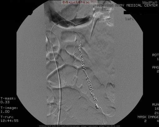 Selected left renal venography demonstrates completed coil embolization of the left gonadal vein and side branch. no residual flow is visualized.