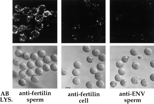 Binding of fertilin-coated beads to zona-free eggs. Yellow-green fluorescent latex beads were coated with an antibody  (AB) against the fertilin β–cytoplasmic tail (anti-fertilin) or with  a control antibody (anti-ENV). Beads were then incubated in either a sperm (sperm) or a macrophage (cell) lysate (LYS.). After  the beads were quenched (with anti–rabbit IgG), washed, and  sonicated, they were incubated with eggs for 1 h in TE as described in Materials and Methods. The eggs were washed and analyzed by confocal microscopy. Paired fluorescence and phase-contrast images from a representative experiment are shown.