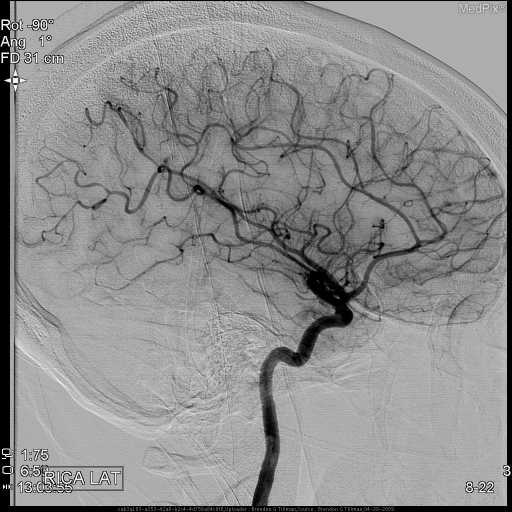 Lateral view of the right cerebral angiography shows irregular variable caliber in cortical vessels predominantly MCA branches.