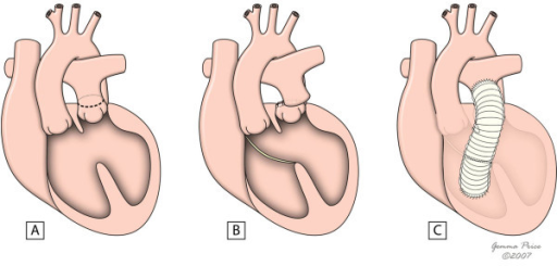 The figure shows the main steps of Rastelli procedure in the setting of a deviated outlet septum (A). A patch is placed to create an interventricular tunnel (B), and an extracardiac conduit is placed between the right ventricle and the pulmonary arteries (C). (adapted from [10]. Martins P, Tran V, Price G, Tsang V and Cook A, Cardiol Young 2008; 18:124–34, with permission from Cambridge University Press).