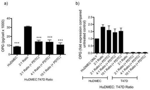 Effect of NFκB inhibition on tumour cell contact mediated endothelial cell OPG production. HuDMECs were co-cultured with the T47D cell line at HuDMEC: T47D ratios of 2:1, 4:1 and 10:1 for 72 hours in the presence or absence of the NFκB inhibitor PDTC as described in materials and methods. HuDMECs were separated from the T47D cell line and gene expression measured in the separate populations. OPG secretion was assessed using ELISA (a) and gene expression measured using real-time quantitative PCR (b). For real-time quantitative PCR, values were normalised to GAPDH and are given as fold expression compared to untreated HuDMECs. Data are represented as mean ± S.E.M. from three independent experiments. ***, p < 0.001 compared to HuDMEC: T47D 2:1 ratio co-culture without PDTC.