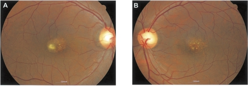Fundus photographs of patient 2. There are multiple fine drusen-like lesions in the macular area consistent with stage 1 North Carolina macular dystrophy.