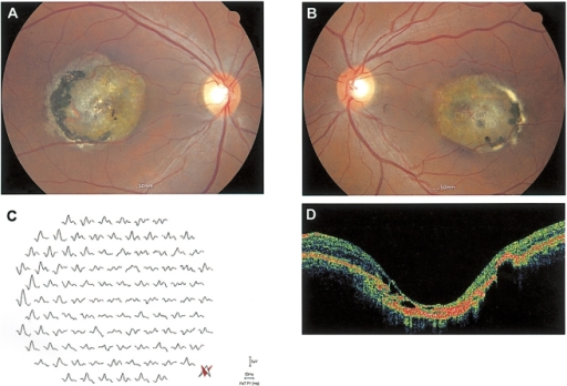 Fundus photographs of patient 1 (A, B) showing large chorioretinal atrophic lesions with visible choroidal vessels. Multifocal ERG (C) shows abnormal responses in the macular area and normal responses outside the lesion. OCT (D) indicates extensive macular atrophy.