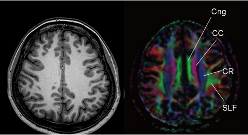 Diffusion tensor imaging shows 4 different tracts inter | Open-i