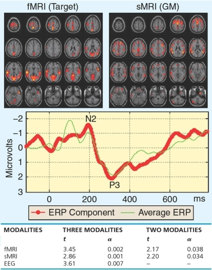Functional magnetic resonance imaging/EEG/sMRI fusion by mCCA from Correa et al. (2010a): a set of associated components estimated by mCCA that showed significantly different loading for schizophrenia patients versus controls, as well as the t-test comparison between three-way and two-way fusion.
