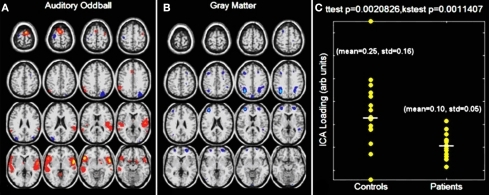 Auditory oddball/gray matter jICA analysis. Only one component demonstrated a significant difference between patients and controls. The joint source map for the auditory oddball fMRI data (A) and gray matter (B) data is presented along with the loading parameters for patients and controls (C).