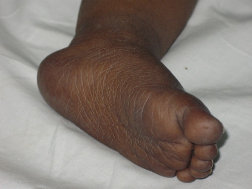 Hyperpigmentation of the foot before treatment.
