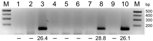 RNA extracted from pools of Culicoides obsoletus group midges was tested in 1-step reverse transcription quantitative PCRs (RT-qPCRs) for the Schmallenberg virus large segment, and the products were analyzed by agarose gel electrophoresis. Lanes 1–8, C. obsoletus group midge pools 1–8; lanes 9–10; negative and positive controls, respectively. Numbers below lanes are cycle threshold values from RT-qPCRs; –, no value. M, size marker. Amplicons (145 bp) from positive pools were extracted and sequenced.