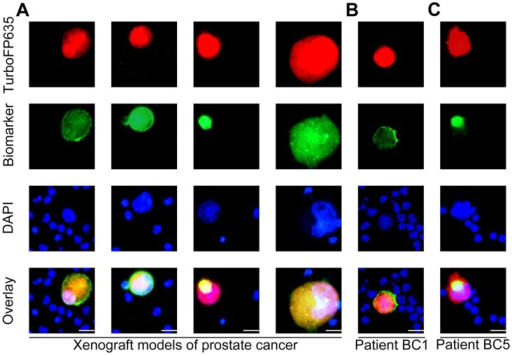 Characterization of CTCs in blood samples detected with GLV-1h254.(A) The CTCs in mice bearing human PC-3 prostate cancer xenografts showed high-level expression of CD44, ALDH1, vimentin and N-cadherin. (B) The CTCs from the human metastatic breast cancer patient BC1 showed the strong expression of CD44. (C) The live CTCs in the human metastatic breast cancer patient BC5 showed the strong expression of ALDH1.