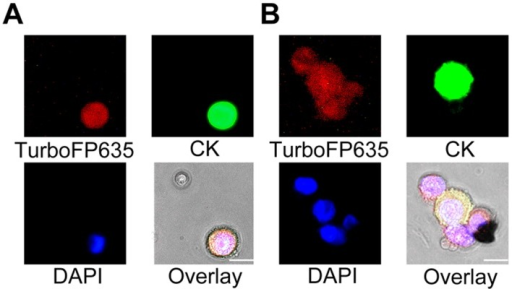 Detection and identification of live tumor cells in a CSF sample.(A) The live tumor cells in the CSF sample of a patient with metastatic breast cancer were identified as TurboFP635+/CK+/DAPI+ cells. (B) A live cancer cell cluster with heterogeneous expression of CK in the CSF sample was identified by VACV.