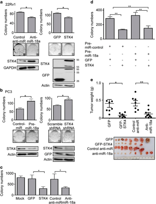 miR-18a promotes the tumorigenicity of prostate cancer cells. (a) Decreased colony-formation ability is observed in 22Rv-1 cells overexpressing STK4 or antagomiR-18a. (b) PC3 cells expressing STK4 shRNA or pre-miR-18a exhibit increased colony-formation ability. (c) STK4 expression inhibits the oncogenic function of miR-18a. STK4 inhibits anchorage-independent growth of prostate cancer cells. 22Rv1 cells were transfected with STK4 or anti-miR-18a. Soft agar colony-formation assays were performed 24 h after transfection. (d) PWR-1E cells overexpressing pre-miR-18a or STK4 were subjected to a colony-formation assay to validate the effects of STK4 and miR-18a. (e) STK4 inhibits tumor growth of prostate cancer cells in nude mice. 22Rv1 cells were transfected with GFP-STK4, control GFP, anti-miR-18a or control anti-miR, respectively. Twenty-four hours after transfection, 1 × 106 cells were subcutaneously injected into of male nude mice. The dot plot show the tumor weight of each mice, and the inset photographs are representative xenografted tumors 6 weeks after inoculation. *P<0.05; **P<0.01. In vivo studies demonstrated that 22Rv-1 cells transfected with STK4 or antagomiR-18a are associated with decreased tumor volume and growth.