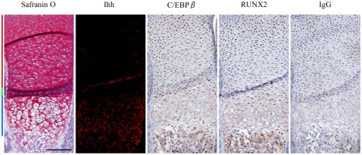 Expression patterns of C/EBPβ, RUNX2 and Ihh during chondrocyte differentiation.Upper limbs obtained from mouse embryos (E16.5) were subject to immunohistochemistry with Ihh, C/EBPβ and RUNX2 antibodies. Tissue stained with IgG is shown as a negative control. Hematoxylin was used as a counterstain. Red, green and blue bars indicate the proliferative, pre-hypertrophic and hypertrophic zones, respectively. Scale bar, 500 µm. Data are representative of two independent experiments performed in duplicate.