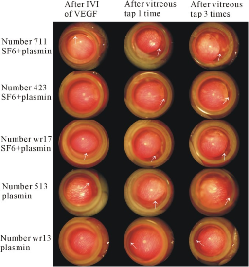 Lens subluxation following plasmin treatment.Representative figures of lens subluxation after intravitreal injections of plasmin and SF6, or plasmin alone, with a subsequent high intraocular level of vascular endothelial growth factor (VEGF), and vitreous tap. After intravitreal injections of plasmin with/without SF6, VEGF, and vitreous tap, lens subluxation was noted in the eyes treated with plasmin and SF6 (plasmin+SF6 group) or plasmin alone (plasmin group) (white arrows). Lens subluxation was progressive in some cases (case number 711, wr17, and wr13) and stationary in others (case 423, and 513). IVI, intravitreal injection.