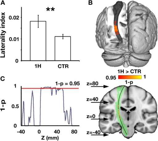 Increased structural asymmetry in one-handers.(A) White matter values (mean fractional anisotropy ± s.e.m.) were extracted from the bilateral corticospinal tracts of each participant, and laterality indices were computed to determine the level of white matter asymmetry across hemispheres ([(intact − residual)/(intact + residual)] for one-handers, and [(dominant − nondominant)/(dominant + nondominant)] for controls). Laterality indices were significantly higher in one-handers compared to controls. (B) To spatially identify regions of increased white-matter laterality, laterality indices were computed for each slice along the superior–inferior axis of the corticospinal tracts, and a group comparison was conducted using permutation-based cluster statistics. Regions showing significant group differences along the corticospinal tracts were centred around the posterior limb of the internal capsule, reflecting higher laterality in one-handers compared to controls. Results are presented on the left corticospinal tract from a posterior view. (C) Right: Regions that show significantly higher laterality values in one-handers are presented on the left corticospinal tract (highlighted in green) along with their spatial locations along the z axis, as marked by arrows. Left: The lateralisation profile of white matter microstructure along the corticospinal tract is represented by p-values, derived from the comparison between one-handers and controls. Higher values indicate stronger statistical differences. The red line marks the significance threshold, corrected for multiple comparisons. 1H, one-handers; CTR, controls; asterisks denote significance at the level of **p < 0.01.DOI:http://dx.doi.org/10.7554/eLife.04605.002
