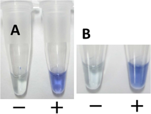 Visual-inspection of dye-mediated monitoring of the Nm LAMP assay.(A) The original pale-yellow color of the visual inspection dye (Kaneka, Co., Ltd, Osaka, Japan) changed to blue in the case of a positive reaction; in the case of a negative reaction, the original pale-yellow color was retained. (B) Visual observation after 7 days.