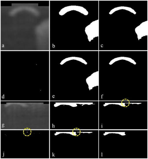 Method of precise guide-wire segmentation.(a)–(f) show a usual case where the morphological top-hat operation may not make any difference, whereas (g)–(l) exemplify such a case where the operation enhances the precision of guide-wire segmentation. (a) Set ROI from a blurred image. (b) Construct a binary image by Otsu's method. (c) Apply the morphological erosion operation. (d) Apply the morphological top-hat operation. (e) Subtract the image in (d) from the image in (c). (f) Detect guide-wire by removing noises. (g) Set ROI, which is too wide. (h) Construct a binary image by Otsu's method. (i) Apply the morphological erosion operation, whose resulting image includes connected guide-wire and noises denoted by a yellow circle. (j) Apply the morphological top-hat operation to detect the connected area denoted by a yellow circle. (k) Subtract the image in (j) from the image in (i) to disconnect guide-wire and noises as a yellow circle shows. (l) Detect guide-wire by removing noises.