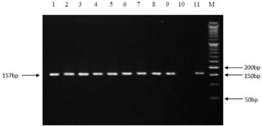 PCR amplification of the 157 bp fragment of rpoB gene. Electrophoresis of PCR products on a 3% agarose gel. Lanes: 1 to 9, positive clinical isolates; 10, negative control; 11, positive control (M. tuberculosis H37Rv); M, Molecular size marker.