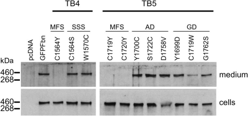 Secretion profiles of GFP-Fbn constructs with disease-associated substitutions. Mutations associated with MFS, SSS, geleophysic dysplasia (GD) or acromicric dysplasia (AD) in domains TB4 and TB5 were engineered into a GFP-tagged fibrillin-1 construct (36) and the resulting constructs used to transiently transfect HEK293T cells. After 3 days in culture, samples of the medium and cell lysates were analysed by western blotting following separation on a reducing 6% SDS-PAGE gel, using an anti-GFP antibody. SSS, GD and AD mutants were detected in the culture medium, in contrast to the MFS mutants. Empty vector (pcDNA) and the wild-type construct (GFP-Fbn) were used as negative and positive controls. Cell lysate samples showed that the lack of recombinant material in the media of the MFS mutants was not due to a loss of protein expression.
