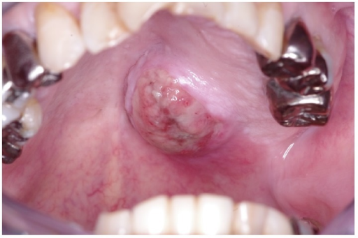 After re-biopsy, the lesion size rapidly increased and a malignant tumor was strongly suspected.