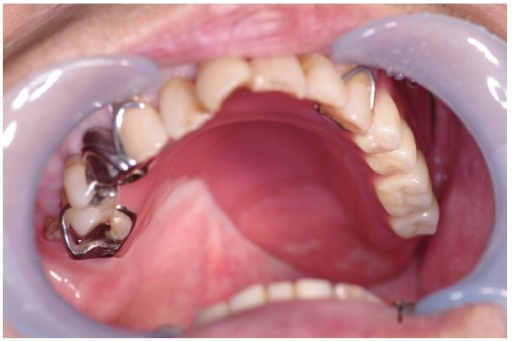 After placement of a denture for a defective maxilla.
