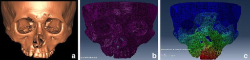 The craniomaxillary complex after a 3D construction, b mesh generation and c FEM analysis