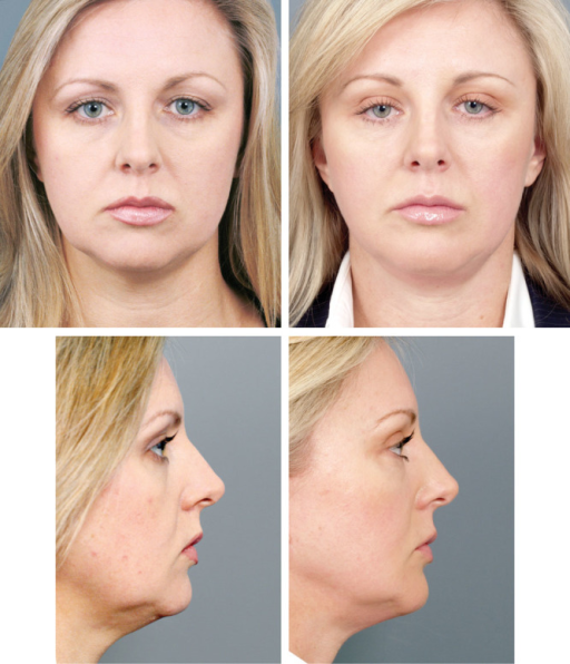 Patient series showing the results of three procedures over 13 years. These show the difference between neck fullness attributable to fat excess and submandibular gland prominence. (Left) A 39-year-old female patient shown preoperatively. (Right) At age 45, 6 years after primary face lift, with midline platysmaplasty, and no defatting submental or subplatysmal and no submandibular gland surgery. Also, placement of prejowl silicone jawline implant (medium size), coronal brow lift, upper and lower blepharoplasties were performed.