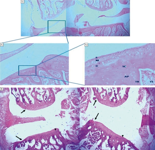 Comparison of normal femorotibial joint with osteoarthritic joint.A: Photomicrograph of a normal (treated with saline as vehicle) Charles Foster rat tibiofemoral joint. The articular surface is smooth. The femoral condyles are separated by meniscus from the tibial plateau. The normal structure of cartilage is organized in three well-ordered zones: the superficial, the mid zone and the deep zone (S, M, D). The subchondral (SC) bone, articular bone plate (AP) and the trabecular bone (TB) are clearly observed. The trabecular space (TS) is filled with hemopoitic tissue. (Grade 0, Stage 0). H & E A1 x20 (panoramic view), A2 x100, A3 x400. B: Photomicrograph of a treated Charles Foster rat femorotibial joint 1 week post IA injection. The articular space between the two ends has widened. The femoral condyles articular surface shows irregularity (arrow). The tibial plateau shows thinning (arrow head) as well as an irregular hyaline cartilage surface (arrow). The subchondral space show diminished hemopoietic tissue with bony spicule loss; (Grade 2-2.5, Stage 2). H&E x20 (panoramic view).