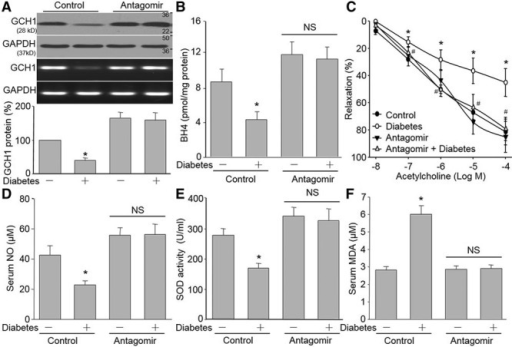In vivo antagonism of miR-133a improves endothelial dysfunction in STZ-induced diabetic mice. The protocol and experimental designs are described in online-only Data Supplement Methods and Figure VIA. (A) Western blotting analysis of GCH1 protein and RT-PCR analysis of GCH1 mRNA in aortic tissues. (B) BH4 content in aortic tissues was determined by HPLC. (C) ACh-induced vasorelaxation in descending aortic artery was assayed using an organ chamber. Serum NO levels (D), serum SOD activities (E), and serum MDA levels (F) were measured in mice. n=10 to 15 per group. *P<0.05 versus control mice alone. #P<0.05 versus diabetic mice. Ach indicates acetylcholine; BH4, tetrahydrobiopterin; GCH1, GTP cyclohydrolase 1; HPLC, high-performance liquid chromatography; MDA, malondialdehyde; miR, microRNA; NO, nitric oxide; NS, no significance; RT-PCR, reverse transcription polymerase chain reaction; SOD, superoxide dismutase; and STZ, streptozotocin.