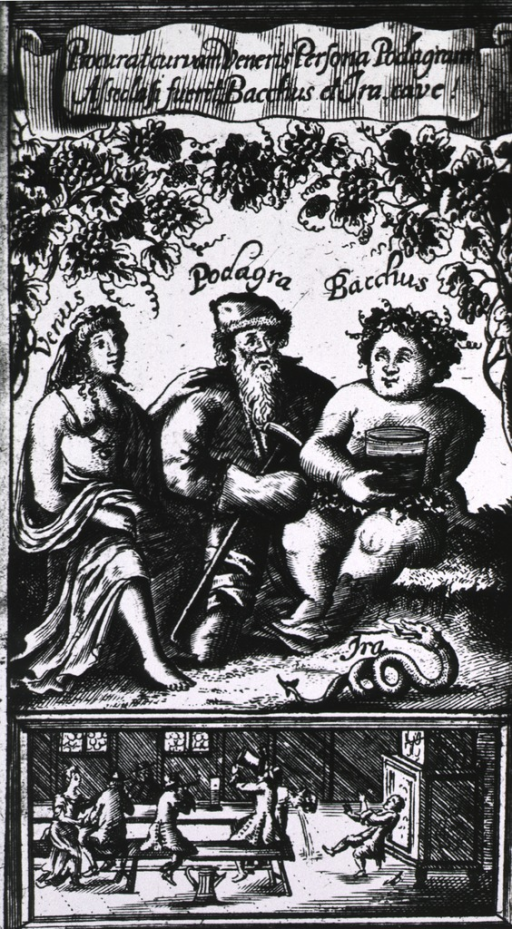 <p>Sitting under grapevines heavy with fruit is Podagra who, though looking like the wise philosopher, personifies the excess represented by Venus and Bacchus who are sitting beside him; below them a tavern scene elucidates the hazards of such abuses.</p>