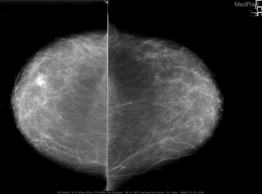 Spiculated mass (approx 1.3 cm diameter) noted in right breast lower outer quadrant anterior third of the breast.